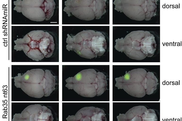 This shows different mouse brains with and without Rab35