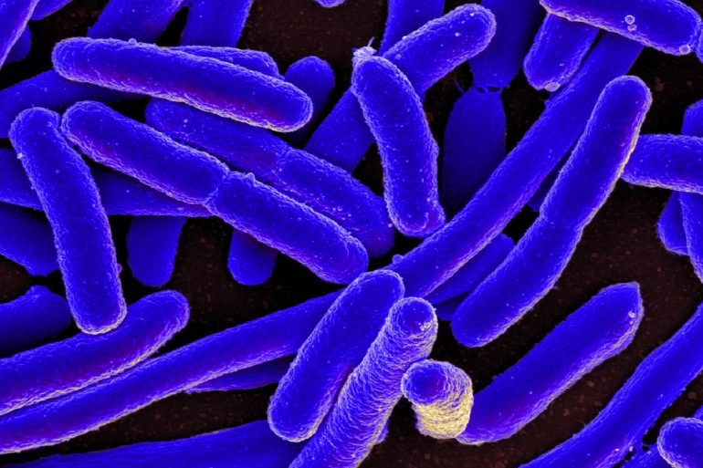 This shows e coli