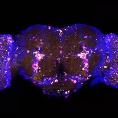 This shows neurons in a fly brain
