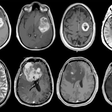 This shows brain scans from glioblastoma patients