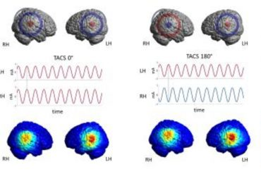 This image shows brain scans from the study