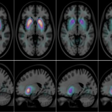 This shows brain scans of people with alzheimers and lbd