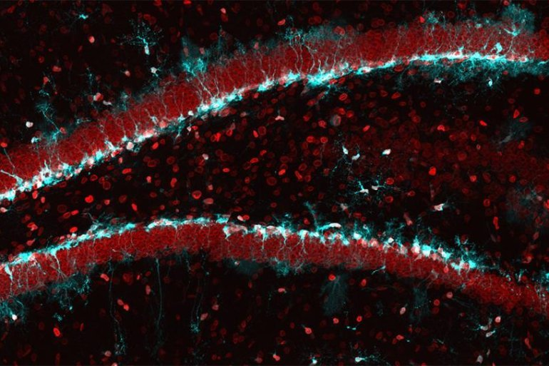 This shows neural stem cells in the hippocampus