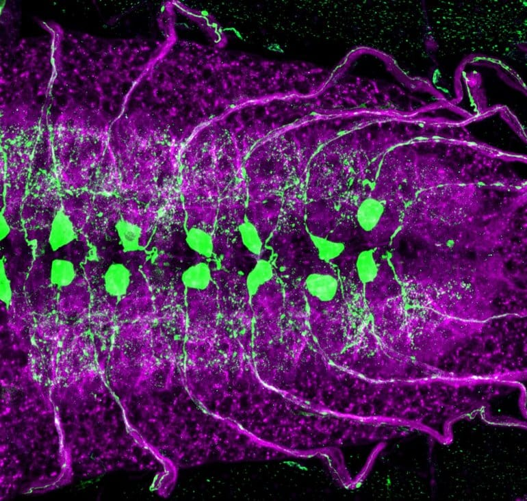 This shows motor neurons in green and purple