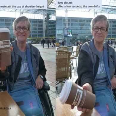 This shows a woman without proprioception trying to hold a cup of coffee