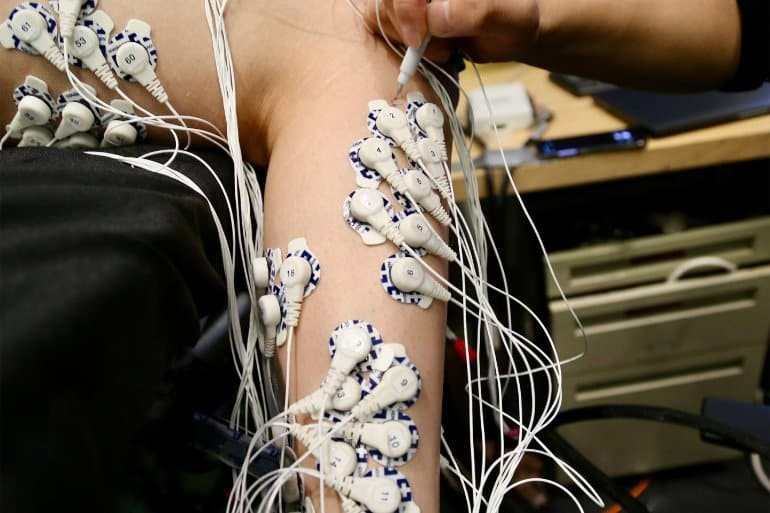 This shows electrodes attached to an arm