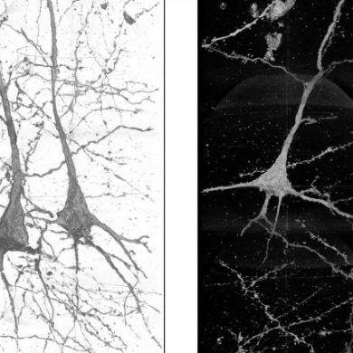 This shows neurons from a schizophrenia patient