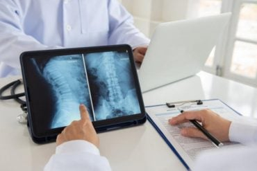 This shows a doctor looking at a spinal cord x ray
