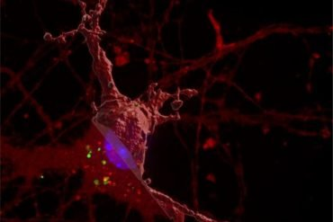 This is a computer reimaging of how tau affects a neuron