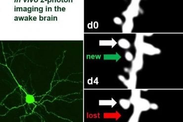 This shows neurons and dendrites