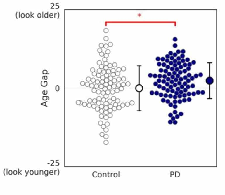 Using Facial Analysis Algorithm to Track Changes Due to Parkinson's Disease