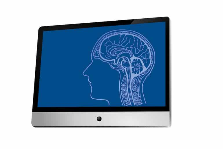 This shows a brain scan on a laptop