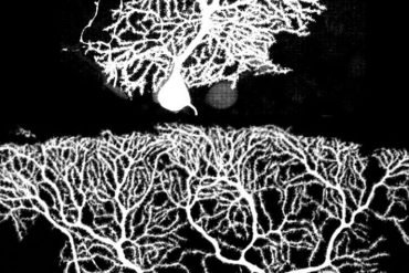This shows purkinje cells