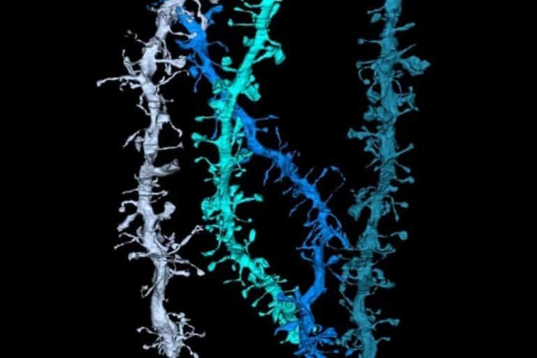 This is a 3D reconstruction of dendrites