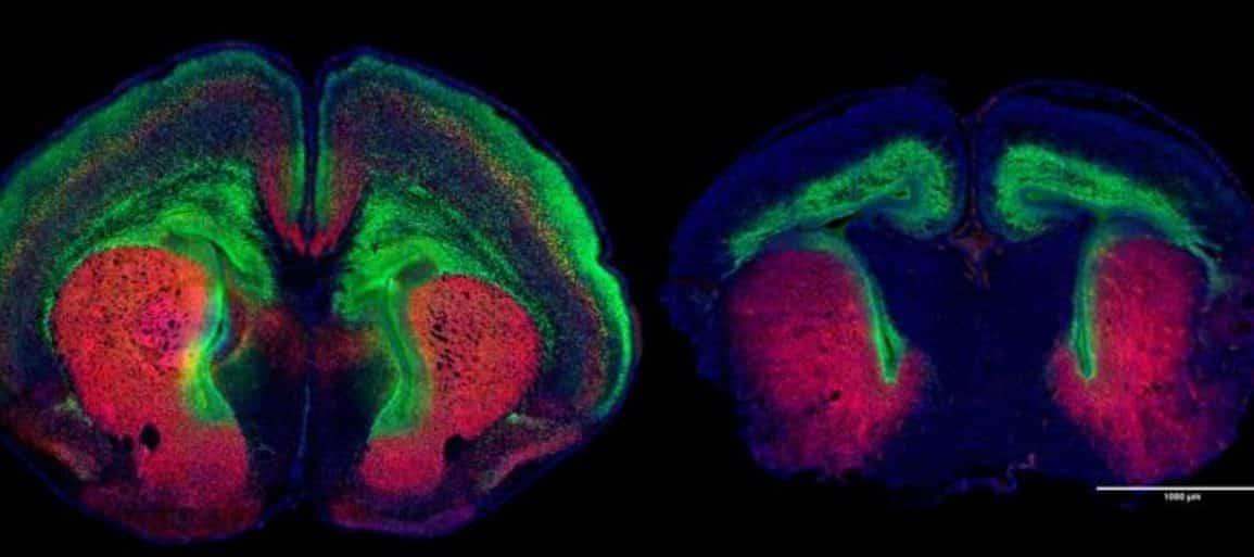 This shows two brain slices of mice