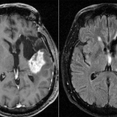 This shows two brain scans from a glioblastoma patient