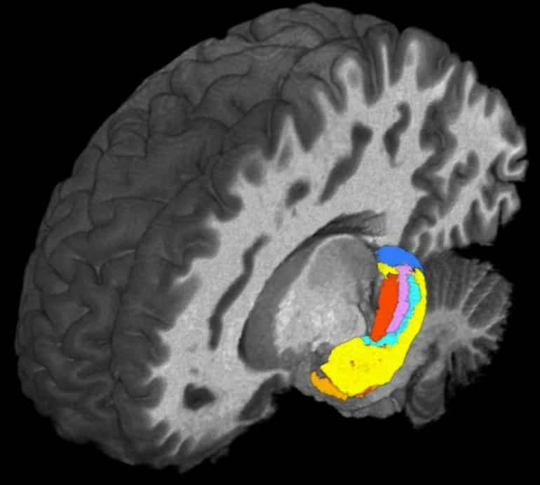 This shows a brain scan with the hippocampus highlighted
