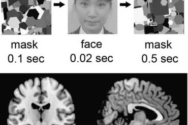 This shows a woman's face and brain scans from the study