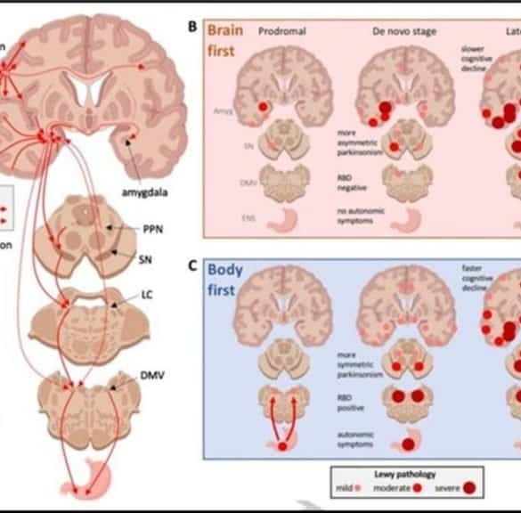 This shows different areas of the brain