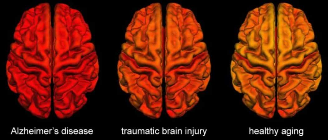 This shows three brain scans, one from an Alzheimer's patient, one from a person with TBI, and one of a healthy aging brain