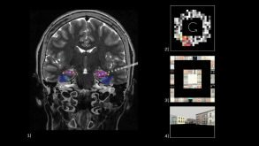 This shows a brain scan and pictures of buildings