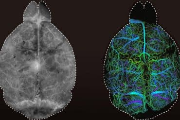 This shows two different images of a mouse brain. One is colored by the DOLI method
