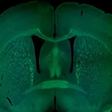 This shows a cross section of a mouse brain