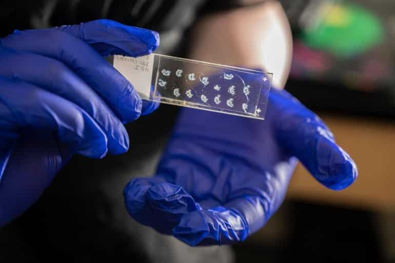 This shows the researcher holding up a slide with different skin samples on it