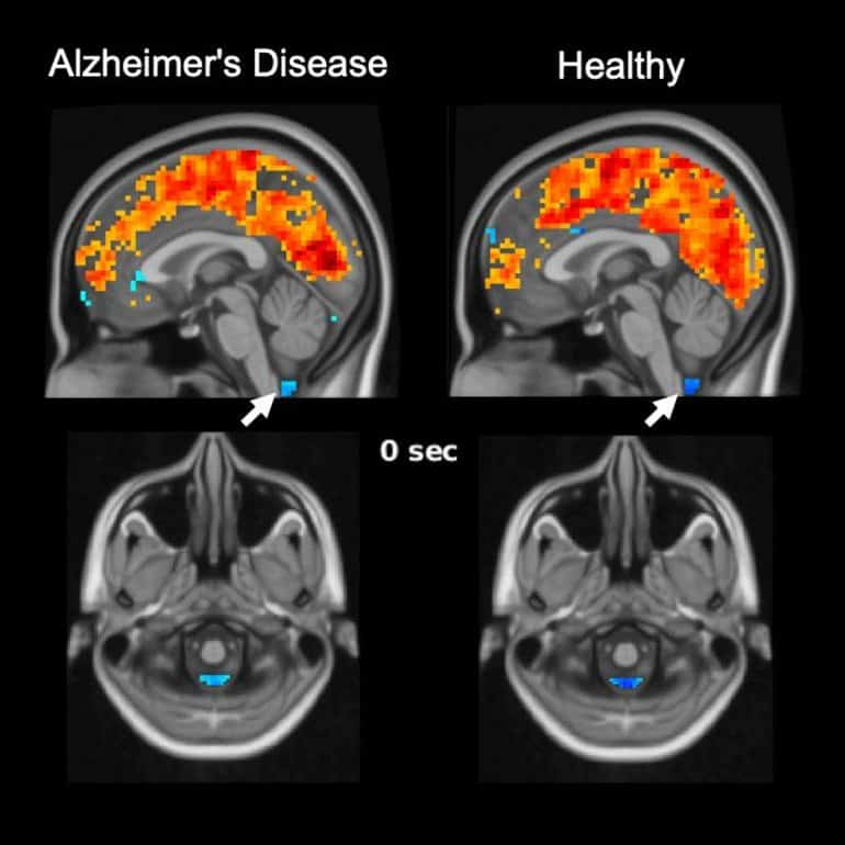 This shows brain scans from the study