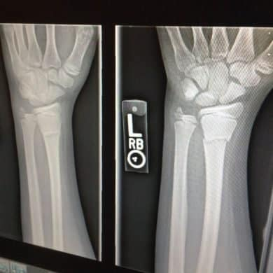 This shows an x-ray of a broken arm