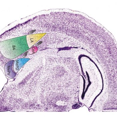 This is a brain slice with the amgydala highlighted