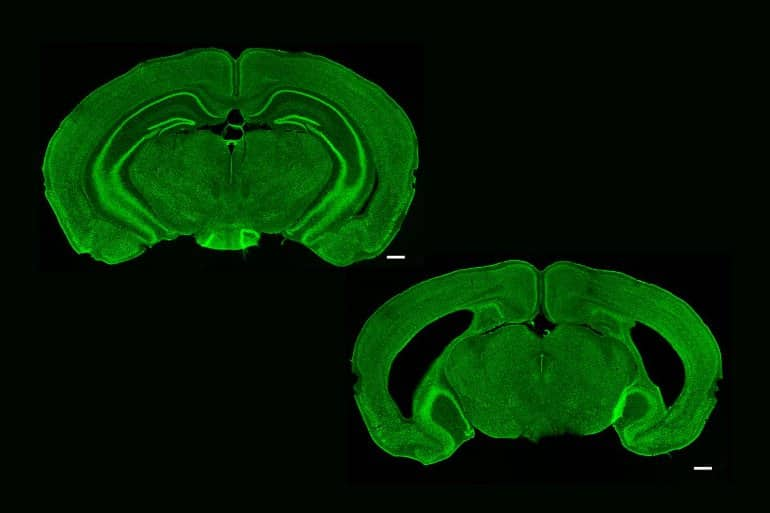 This shows two brain slices. One has a hippocampus, the other does not