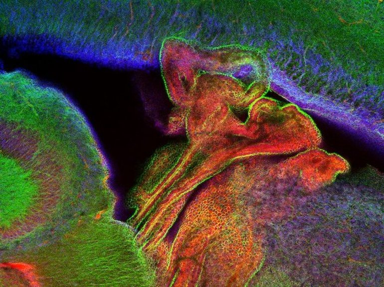This shows the choroid plexus of a mouse