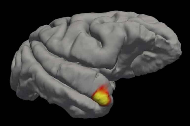 This shows the brain area lit up