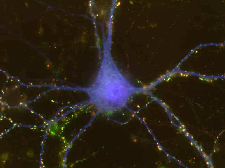 This shows a cortical neuron