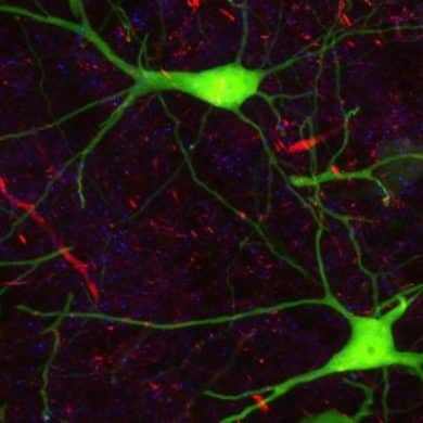 This shows neurons in a mouse brain