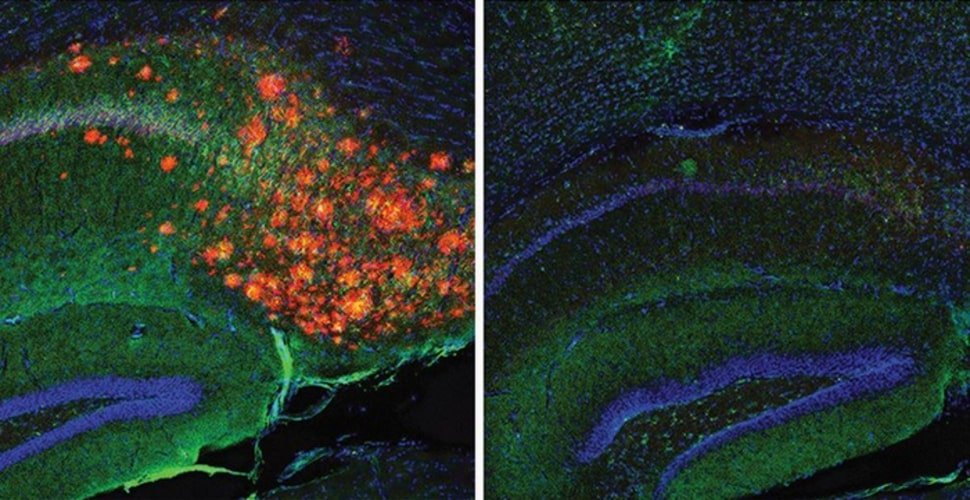 This shows astrocytes