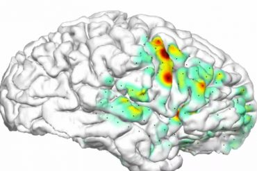 This shows the heatmap overlaid on a brain image