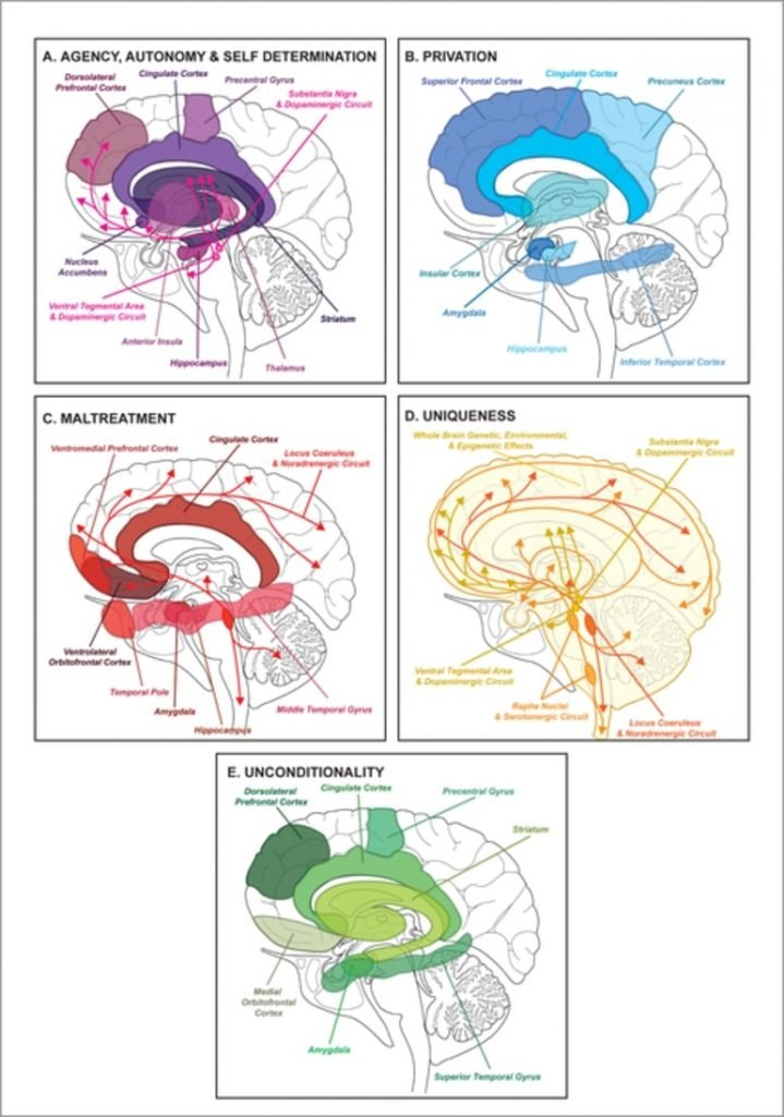 This shows different brain images