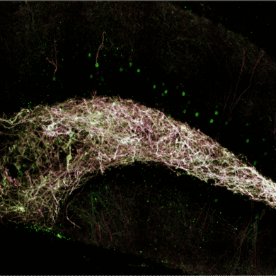 This shows neurons in the dentate gyrus