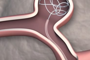 This shows the catheter moving through a vein