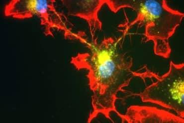 This shows microglia cells