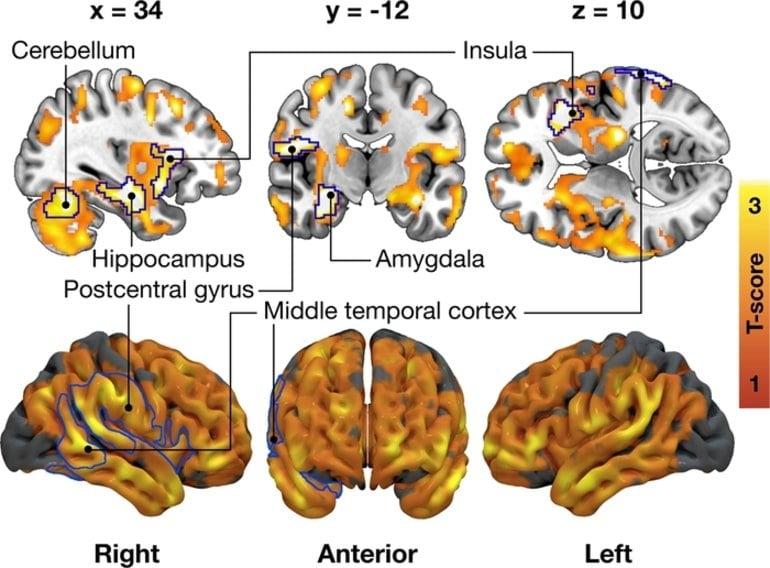 This shows neuroimaging of brain regions