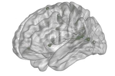 this shows the van-dan network in the brain