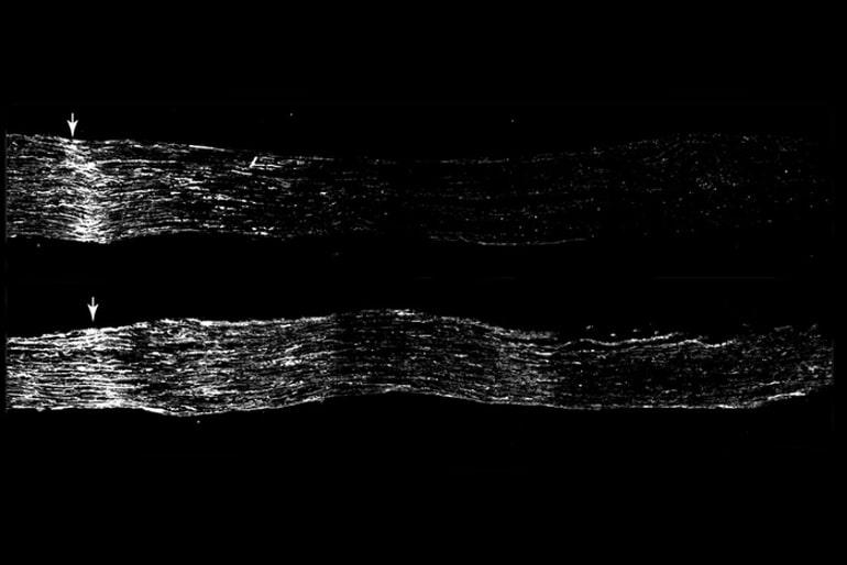 This shows the sensory neuron neurogenesis