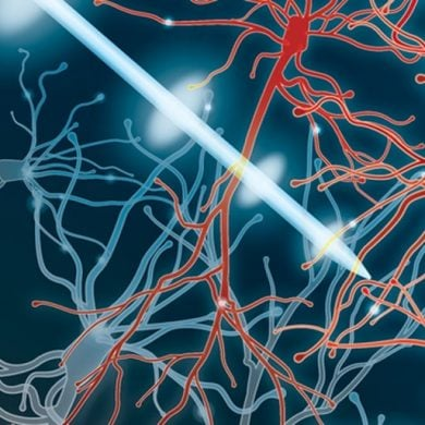 This illustration shows the tip of a needle among neurons