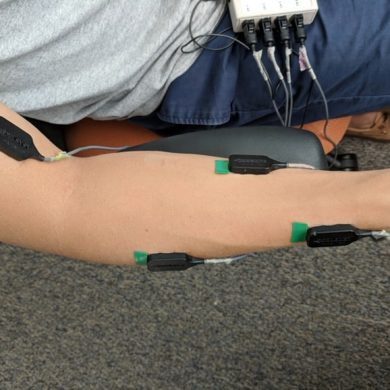 This shows an arm with electrodes on it