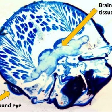 This shows a cross section of a termite brain