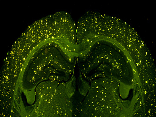 NO's role in brain cell death