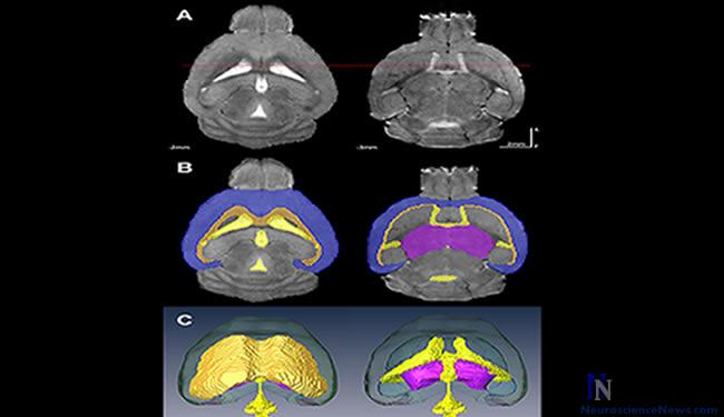 neuroscience articles in press